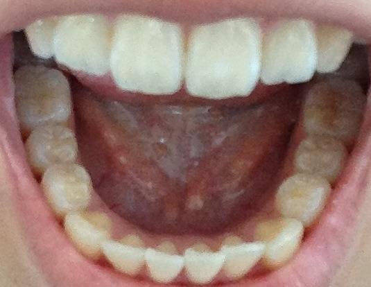 Wie hoch liegen die Kosten für die unsichtbare Zahnspange ClearAligner in meinem Fall?